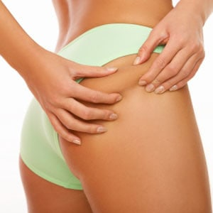 The Cellulite Destroyer Review: Can Cellulite Really Be Destroyed Naturally?