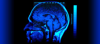 The Complex Career of a Brain Injury Lawyer 2